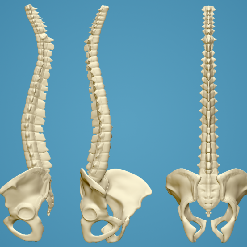 Picture of spine and pelvis
